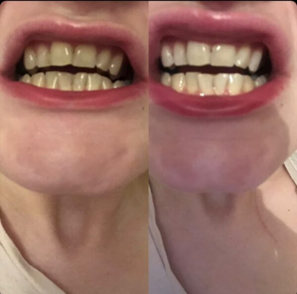 before and after gleamwhite