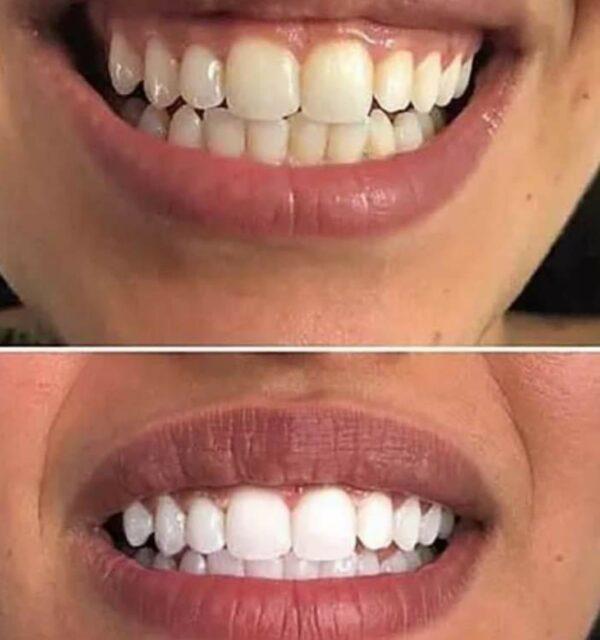 voor en na whitestrips